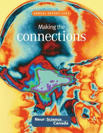 Annual reports, 2004 - Brain Canada