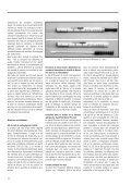 Nettoyage des instruments chirurgicaux réutilisables: - Page 2
