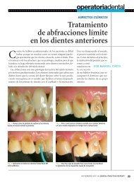 Tratamiento de abfracciones límite en los dientes anteriores