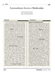 Leucocitoses Leves e Moderadas Maria de Lourdes ... - NewsLab