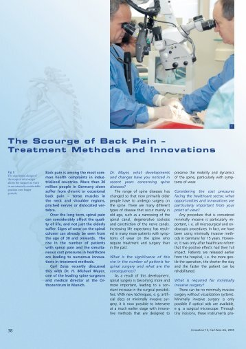 The Scourge of Back Pain – Treatment Methods and Innovations