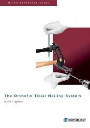 The Orthofix Tibial Nailing System - Osteosyntese