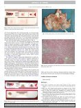 Detection of myocardial degeneration with point-of-care cardiac ... - Page 2
