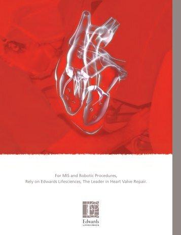 Carpentier-Edwards Physio annuloplasty ring - Edwards Lifesciences