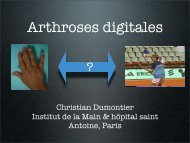Arthrose digitale - ClubOrtho.fr