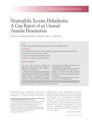 Neutrophilic Eccrine Hidradenitis: A Case Report of an Unusual ...