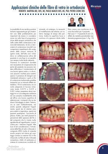 Applicazioni cliniche delle fibre di vetro in ortodonzia - Micerium