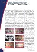 Applicazioni cliniche delle fibre di vetro in ortodonzia - Micerium - Page 2