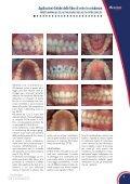 Applicazioni cliniche delle fibre di vetro in ortodonzia - Micerium - Page 3