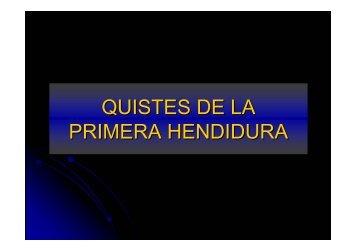 QUISTES DE LA PRIMERA HENDIDURA