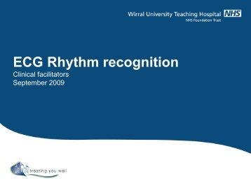 ECG Rhythm recognition
