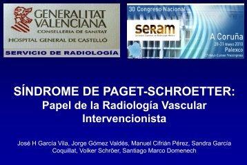SÍNDROME DE PAGET-SCHROETTER - 30 Congreso de la ...