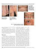 Skin manifestations in familial heterozygous hypercholesterolemia - Page 2