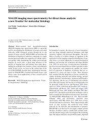 MALDI imaging mass spectrometry for direct tissue analysis