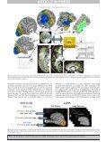 SUMA NeuroImage - the AFNI/NIfTI Server - National Institutes of ... - Page 5