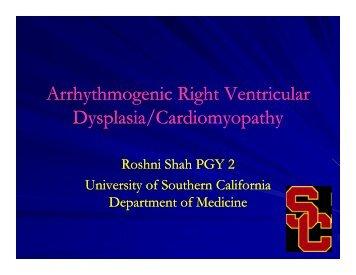 Arrhythmogenic Right Ventricular Dysplasia/Cardiomyopathy