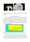 kaşar peynirinin saklanması sırasında küflenme hızı ile yüzey yapısı ... - Page 4