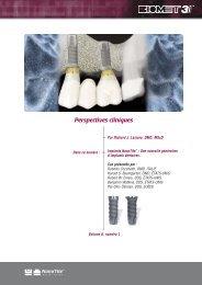 Implants NanoTite ™ Une nouvelle génération d ... - BIOMET 3i