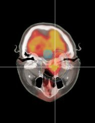 Stereotactic Radiation Therapy: Expanding Capabilities - Varian