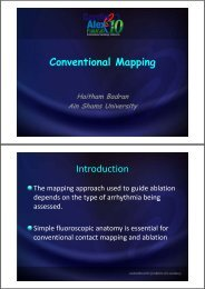 Entrainment mapping