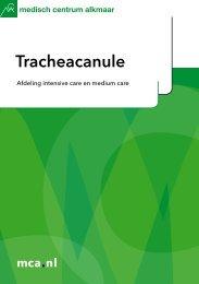 Tracheacanule - Mca