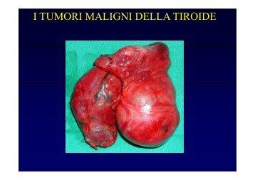 I TUMORI MALIGNI DELLA TIROIDE