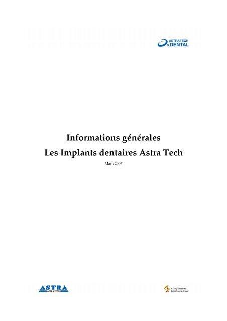 Informations générales Les Implants dentaires Astra Tech