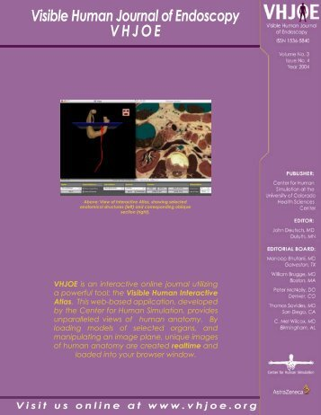 Visible Human Journal of Endoscopy VHJOE V ... - Vhjoe.org