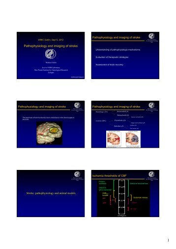 Pathophysiology and imaging of stroke