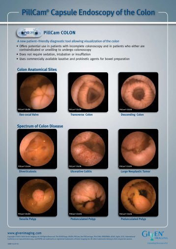 PillCam® Capsule Endoscopy of the Colon - Inclino