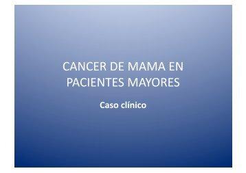 CANCER DE MAMA EN PACIENTES MAYORES - IGBA