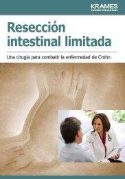 Resección intestinal limitada - Veterans Health Library