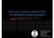 Non-malignant mimickers of primary lung cancer - H.U.C.