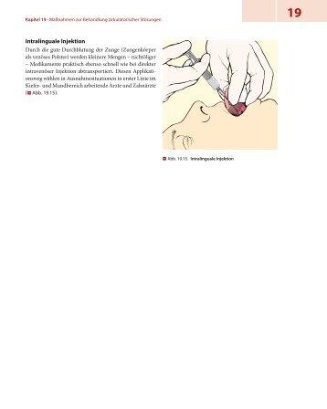 Intralinguale Injektion - Lehrbuch Rettungsdienst