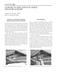 closure of deep fascia in ankle fracture surgery - The Podiatry Institute