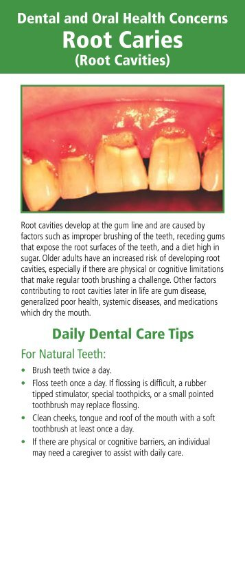 9j Special Topics in Oral Health - Root Caries.pdf - GiiC