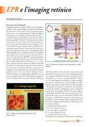 EPR e l'imaging retinico - Studio Oculistico dott. Amedeo Lucente