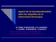 Apport de la tomodensitométrie dans les séquelles de la ...