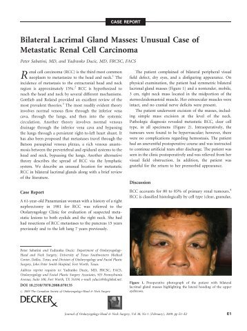 Temporal Bone Chondroblastomas Dr Yadro Ducic Fort Worth