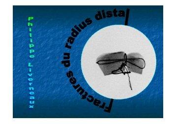 Fractures du radius distal Ph. Liverneaux - ClubOrtho.fr