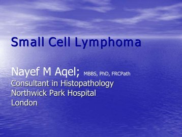 Small Cell Lymphoma - NCI