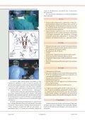 la Laparoscopia la Laparoscopia - Page 2