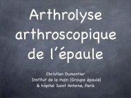 Arthrolyse arthroscopique épaule Ch. Dumontier - ClubOrtho.fr