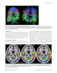 Multiplexed Echo Planar Imaging for Sub-Second Whole Brain FMRI ... - Page 5