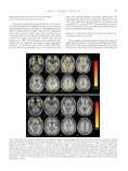 Changes in hippocampal connectivity in the early ... - ResearchGate - Page 4