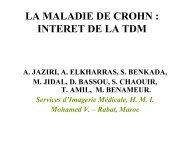LA MALADIE DE CROHN : INTERET DE LA TDM