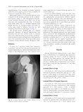 Hip Dislocation After Modular Unipolar Hemiarthroplasty - Page 3