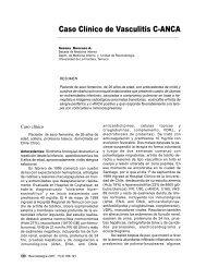 Caso Clínico de Vasculitis C-ANCA
