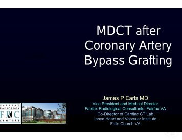 MDCT after Coronary Artery Bypass Grafting
