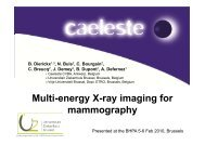 Multi-energy X-ray imaging for mammography